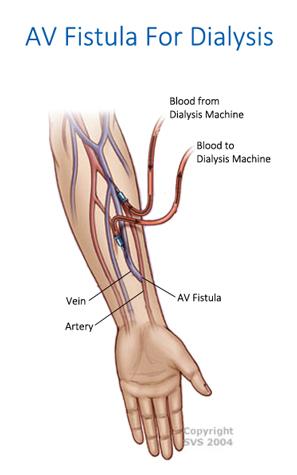 AV Fistula Surgery in Spring Hill, Florida