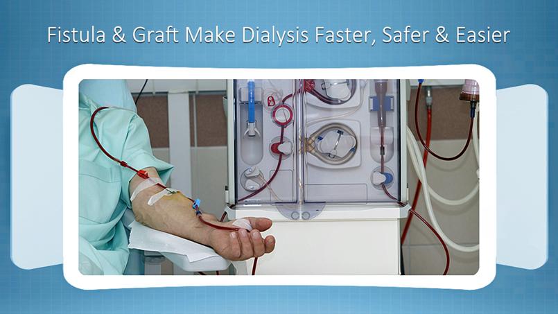 AV Fistula for Dialysis in Spring Hill, FL
