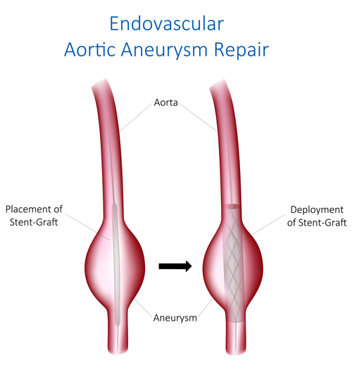 Endovascular Aortic Aneurysm Repair