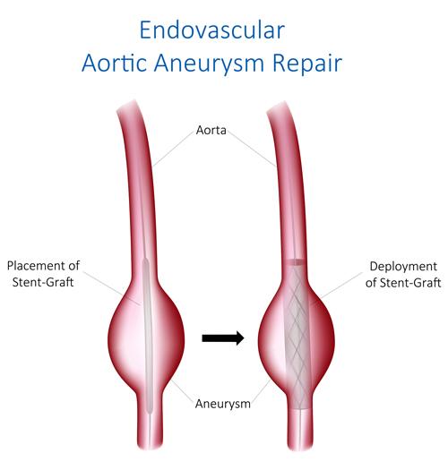 Endovascular Aortic Aneurysm Repair