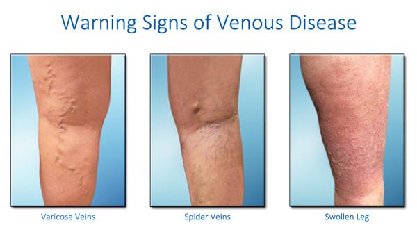 Vascular disease symptoms