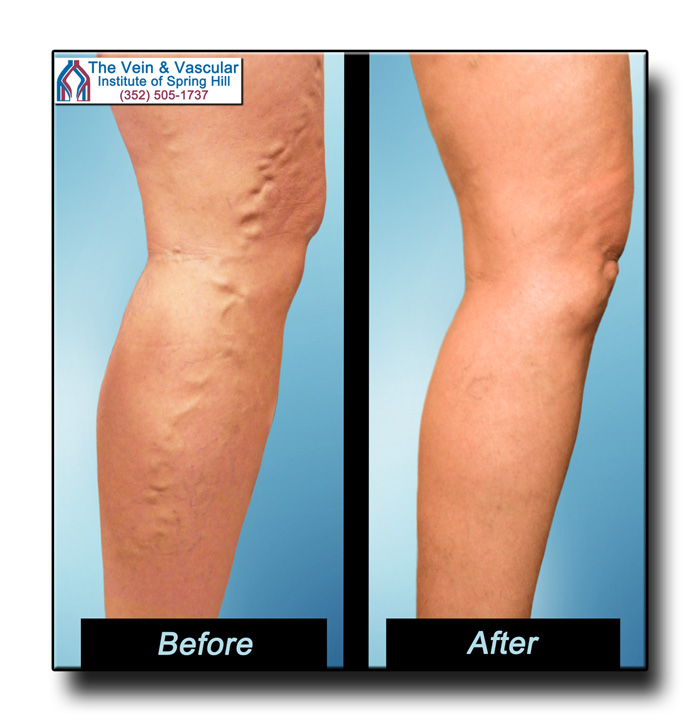 Before and After Pictures of Varicose Veins After Treatment by Dr. Tom Kerr
