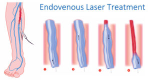 Endovenous Laser Treatment at The Vein and Vascular Institute of Spring Hill, Florida