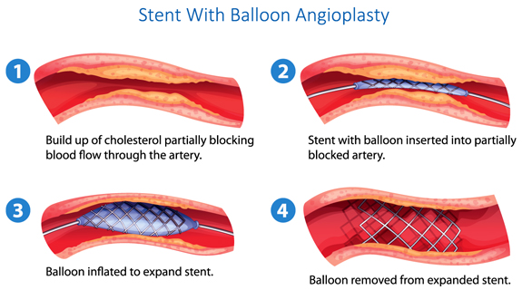 Peripheral Arterial Disease Treatment