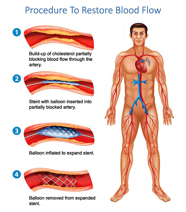 Peripheral Artery Disease Treatment Florida