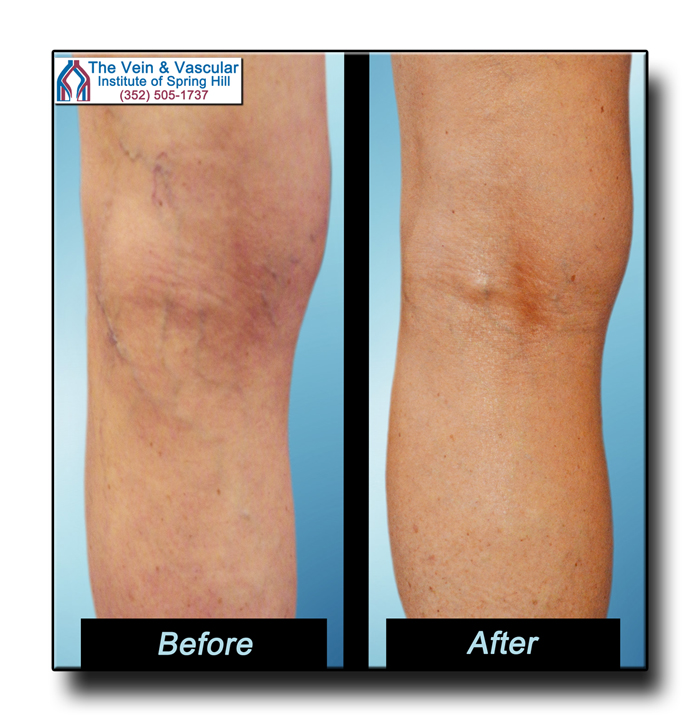 Spider Vein Removal Before and After Picture