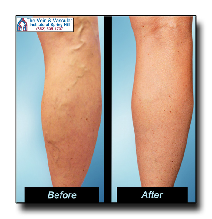 Spider Vein and Varicose Vein Removal Patient Picture
