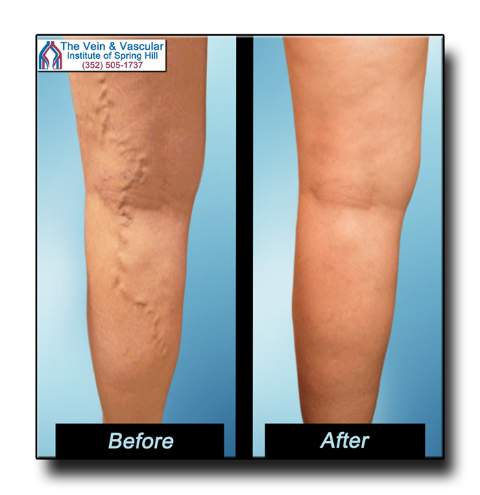 Varicose Veins Before and After Pictures From The Vein and Vascular Institute