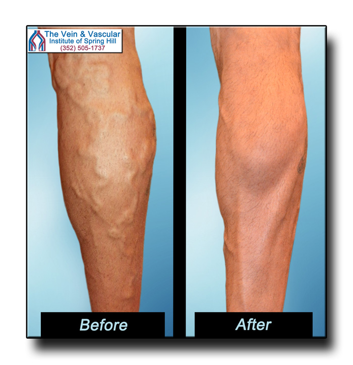 Pictures of Varicose Veins Removal Before and After Leg Vein Surgery