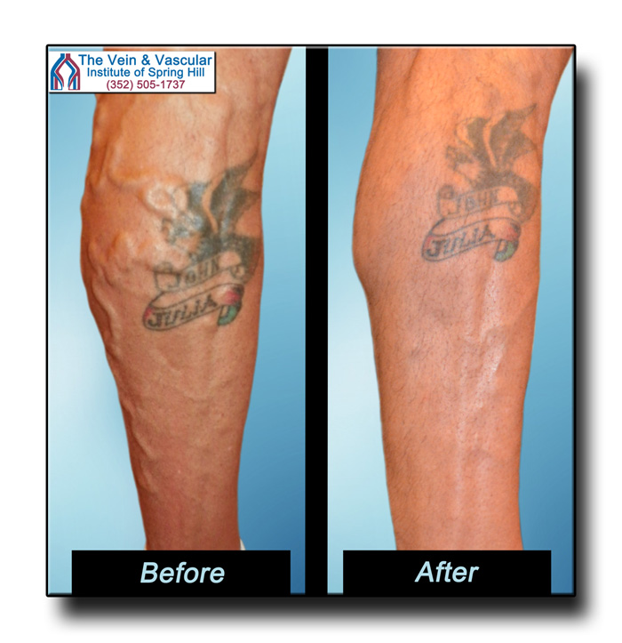 Varicose Veins Photos Before and After Laser Vein Removal by Dr. Kerr