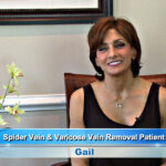 Spider Vein Treatment and Varicose Vein Removal Patient