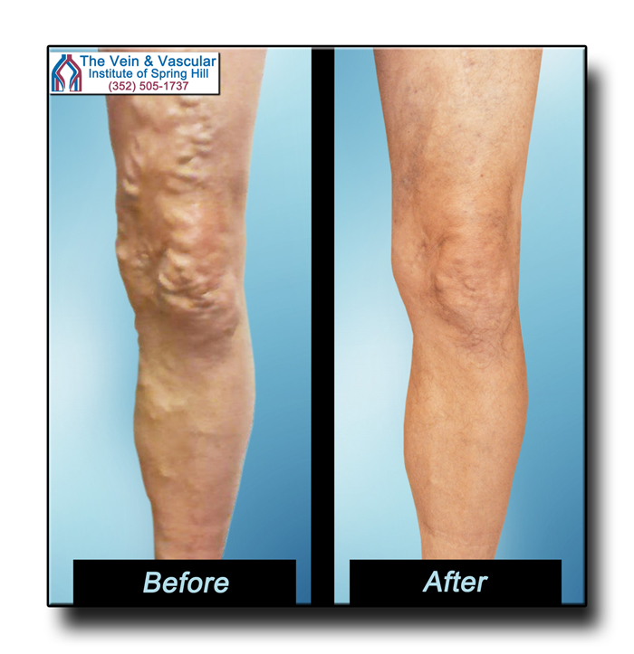 Vein Removal Spring Hill FL Pictures