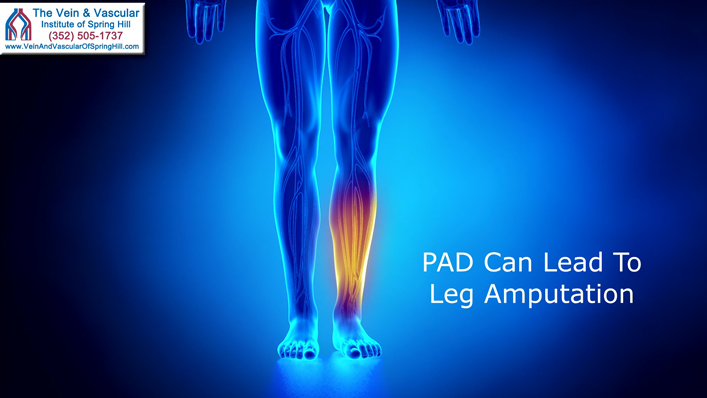 Peripheral Artery Disease Treatment in Spring Hill Florida To Prevent Leg Amputation